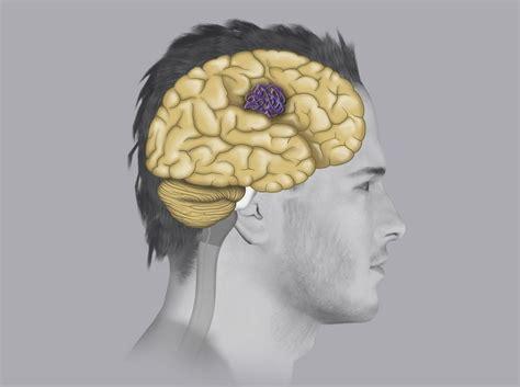 vasi cavernosi angiomi cavernosi sintomi diagnosi e trattamento