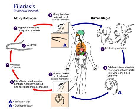 Filariasis Wikipedia