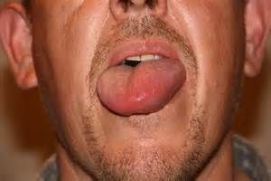 Angioedema Hives Uticaria  Hives Angioedema