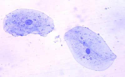 beautiful cheek cells   lisabugenske