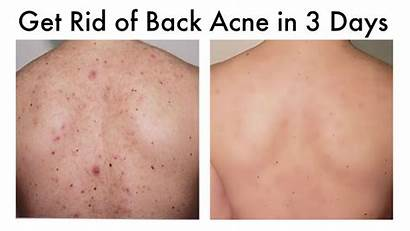 Acne Rid Causes Remedies Skin Pimples Why