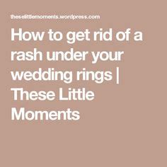 wedding ring rash problem solver i need to give this a try i not wearing my ring wed