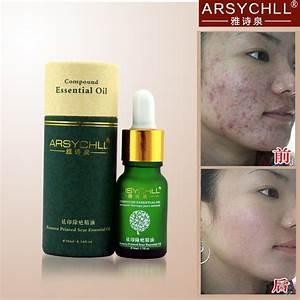 Face Care Acne Scar Removal Cream Acne Spots Skin Care ...