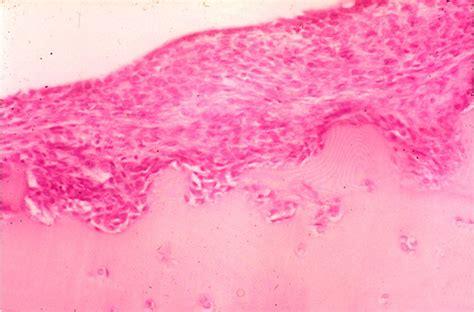 rheumatoide arthritis wikipedia