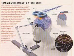 Transcranial Magnetic Stimulation  Brain Stimulation