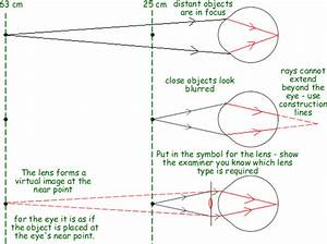 A Cyberphysics Page  Medical Physics Questions On The Eye