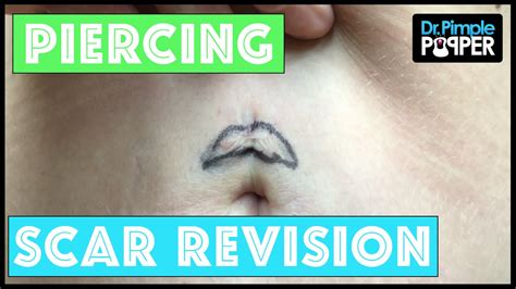 scar revision   bad belly button piercing youtube