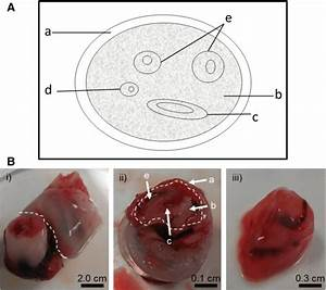 Isolation Of Umbilical Cord Tissue For Dna Extraction   A  A Schematic