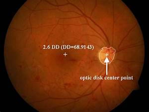 Color Eye Fundus Image With The Optic Disk Center Point