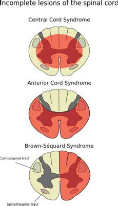 anterior spinal artery syndrome wikipedia