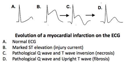 Lec 14 Cardiac Cycle I At Rutgers New Jersey Medical