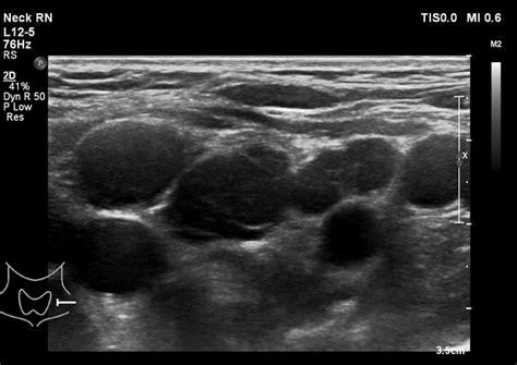 Lymphoma Action | Ultrasound scan