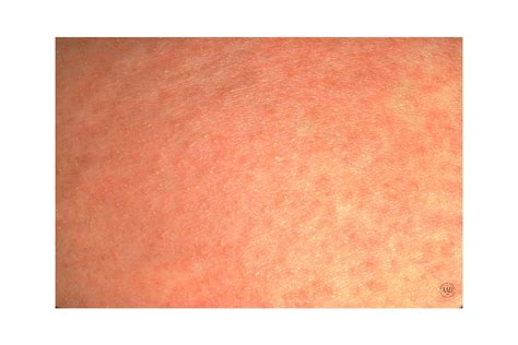 Breast Rash And Itching