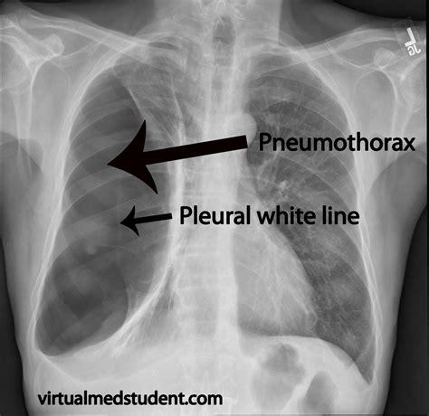 Pneumothorax Causes Symptoms Treatment Pneumothorax