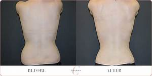 Female Back & Love Handles Liposuction Before & After ...