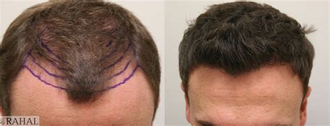 Best Hair Transplant Results: Photos, Reviews, Cost & More