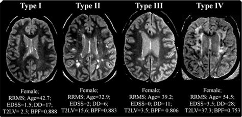 Proton Density Weighted Mri by Representative Proton Density Mri Scans Showing The Mri