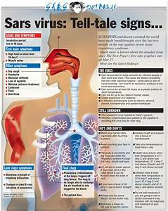 Severe Acute Respiratory Syndrome (SARS)Syndrome Sarli, Disease ... Severe Acute Respiratory Syndrome (SARS)