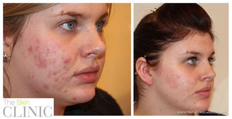 blue light therapy for acne lustre light blue light therapy shows significant