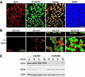 Foxj1 Is Required For Apical Localization Of Ezrin In