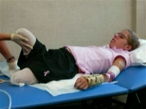 amputee fights  coverage  prosthetics abc news