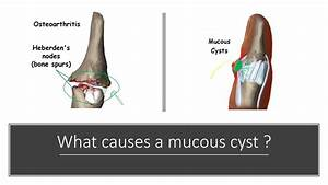 Mucous Cyst Diagnosis And Treatment By Dr  Anzarut