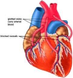 Coronary bypass surgery Heart Bypass Surgery