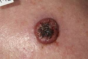 invasive squamous cell carcinoma skin cancer - pictures ...