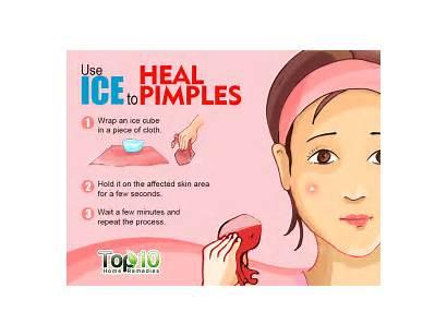 Pimples Rid Acne Bumps Natural Zits Pimple