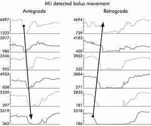 Differences In Impedance Changes During Swallowing And