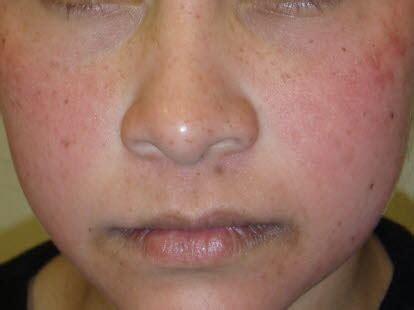 ringelroeteln erythema infectiosum deximed