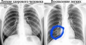 Защита печени при туберкулезе