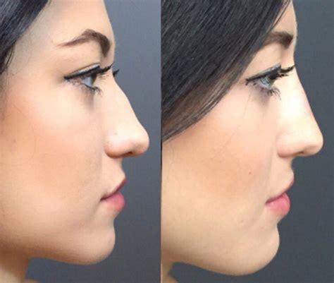 minute nose job cosmetics geniusbeauty