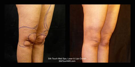 Calves, Knees & Ankles | Silk Touch Med Spa | Dr. Brian Kerr
