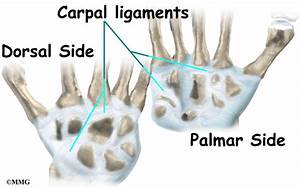Wrist Ligament Injuries