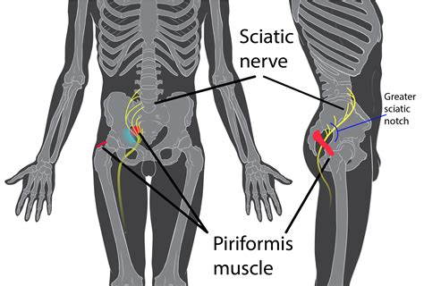 Come Diminuire Il Sedere Sindrome Piriforme Cos 232 E Come Va Trattata
