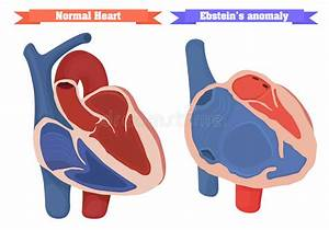Ebstein Anomaly Versus Normal Heart Structure Vector