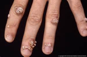 What Causes Warts On Hands
