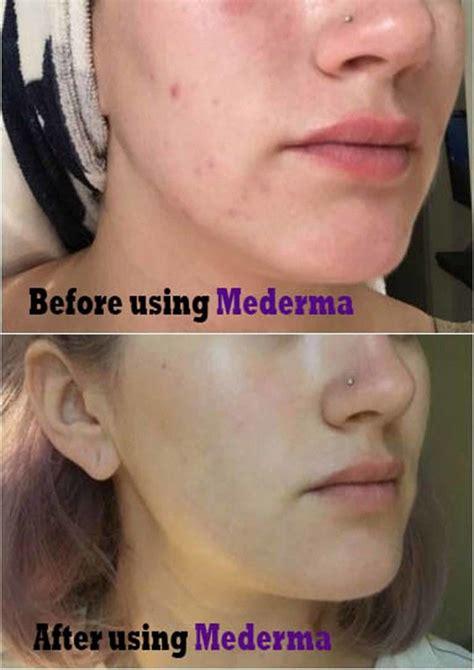 mederma acne scars cream mederma acne mederma acne