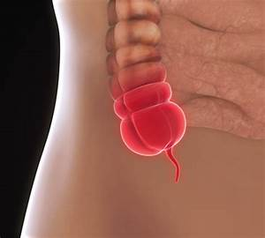 Appendicitis Tests For Diagnosis And Treatment