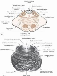 A  Diagram Of A Cross Section Through The Upper Pons At