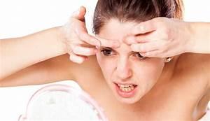 Acne voeding dieet