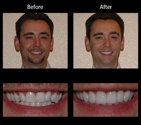 boise dentist smile gallery boise dentist