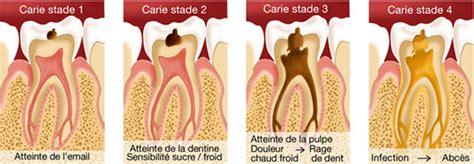 comment calmer une rage de dent comment calmer une rage dents naturellement sans prendre de comprim 233 s d antalgiques ou d