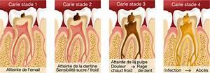 Rage De Dents Que Faire : comment soulager soigner une rage de dents laboratoire medident ~ Maxctalentgroup.com Avis de Voitures