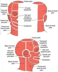 Diagram Of Right Rear Molar by 23 Best Headache Map Images Headache Map Chronic