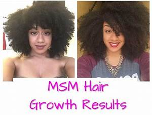 Msm Hair Growth Before And After Pictures