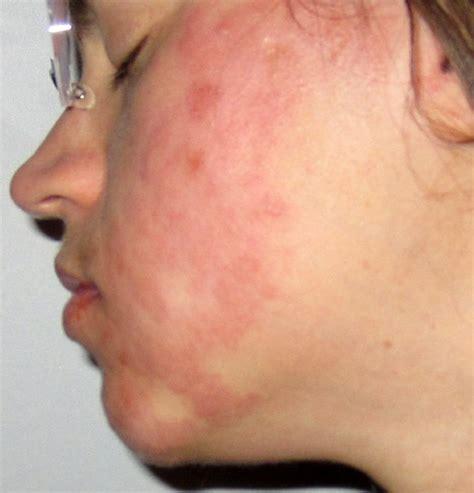zahnschmerzen ohrenschmerzen guertelrose