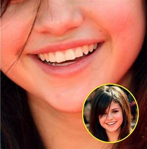 Selena Gomez, Or Not? Teeth Tell the Tale – TheImproper.com