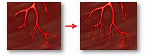 Is There A Natural Way To Remove Heart Blockages Without